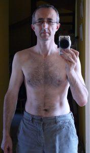 Après la perte de poids
